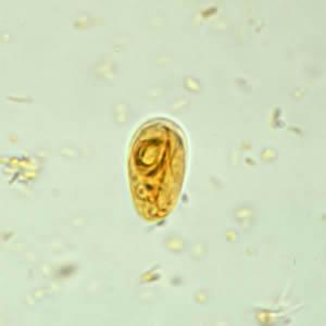 giardia magyarul parazita megelőzés gyermekeknél