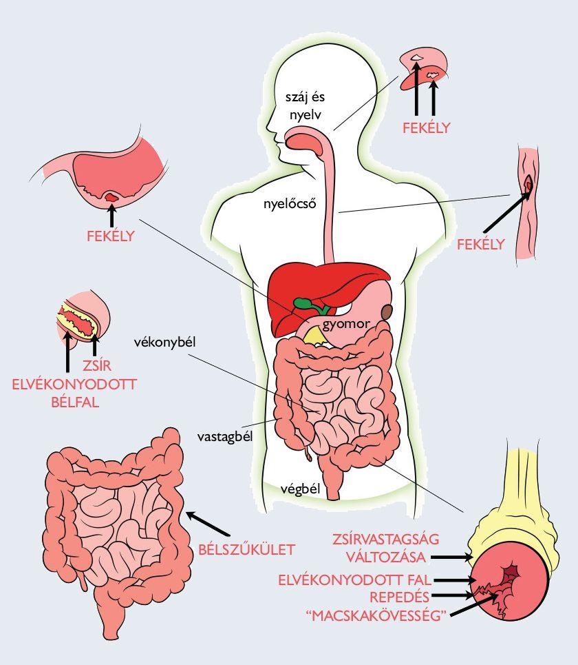 hogyan feladja az enterobiosis? a legjobb gyógyszer férgek és giardia ellen