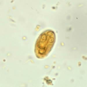 giardia se vede in scaun parazita elleni védekezés emberben