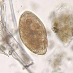 rostellum paraziták