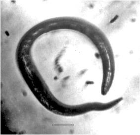 mely idő elteltével kikerülnek a férgek enterobiosis veszélyes