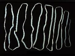 kelas pada filum nemathelminthes enterobiosis etiológia