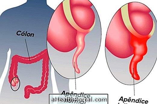 enterobiosis referenciaértékek féreggyógyszerek 3 éves gyermekeknél