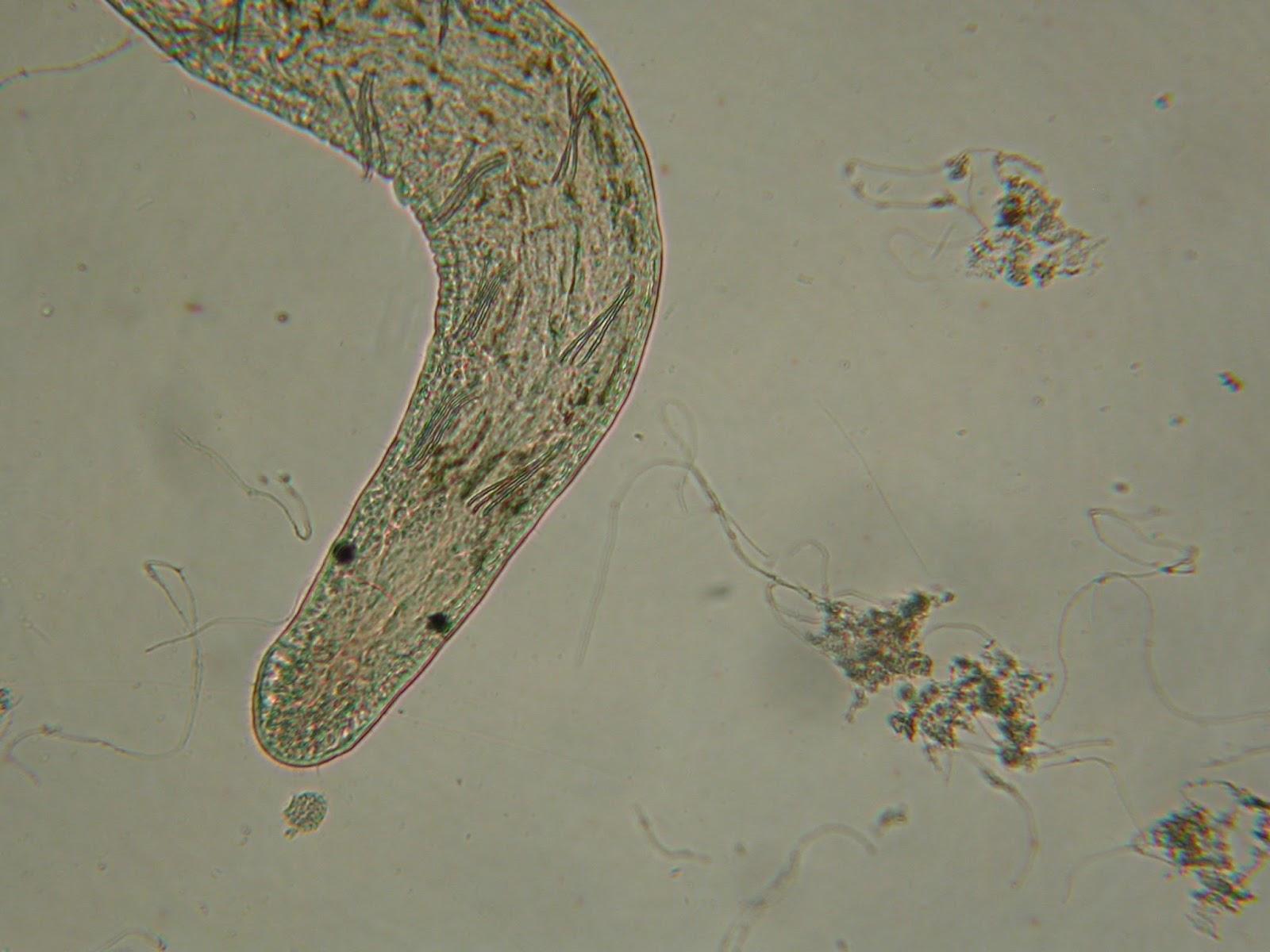 hogyan lehet megszabadulni az izmokban élő parazitáktól
