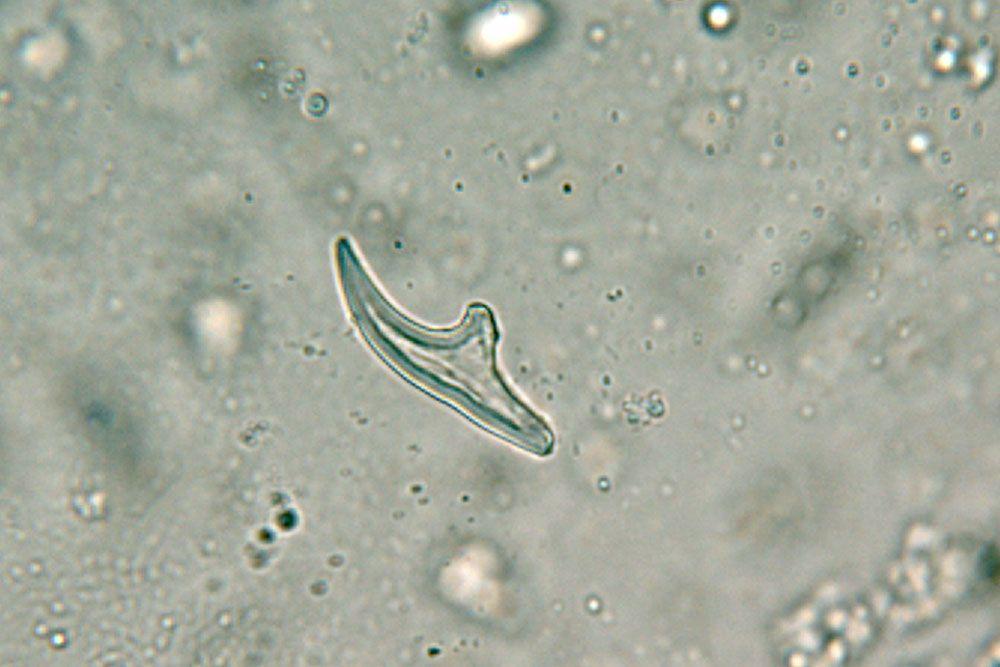 fascioliasis tojások orokre gyogyitja a parazitakat