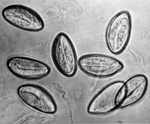 fertőzés pinworm gyógyszerek minden típusú parazitának felnőttekben