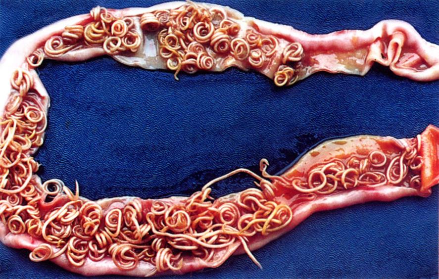 12 biztos jele annak, hogy parazita van a testedben | katerinavendeghaz.hu