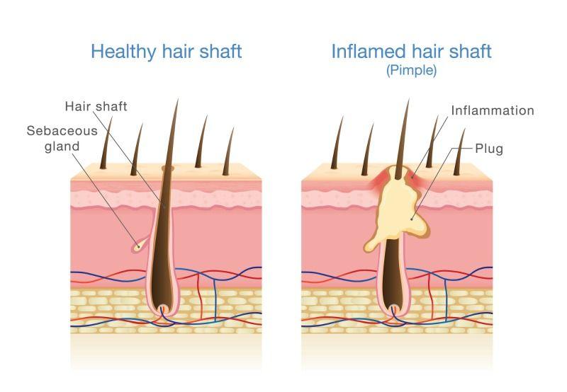 pinworm kezelés a szoptatáshoz galandféreg szaporodasa