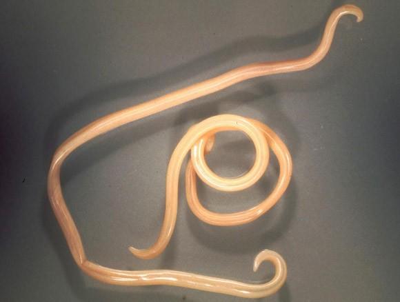 parazitak eltavolitasa a szervezetbol