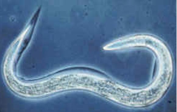 hogyan lehet kiuriteni a parazitákat a tudobol
