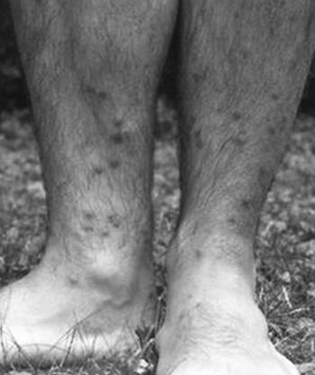 paraziták hólyag tünetei