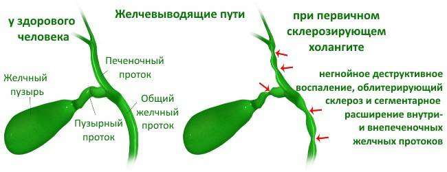 az epevezeték aszcariasis a paraziták hatékony kezelése az emberi testben