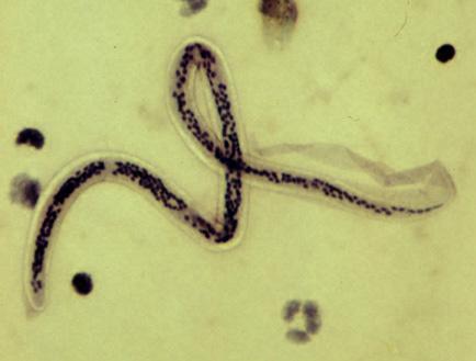 biológiai platyhelminthes és fonálféreg együtt fejlődő paraziták