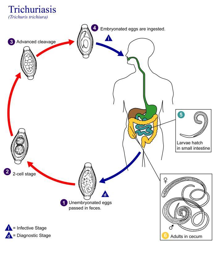 hogyan lehet eltávolítani a pinworms embereket