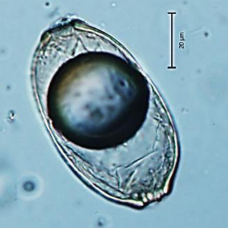 pinworm stádium