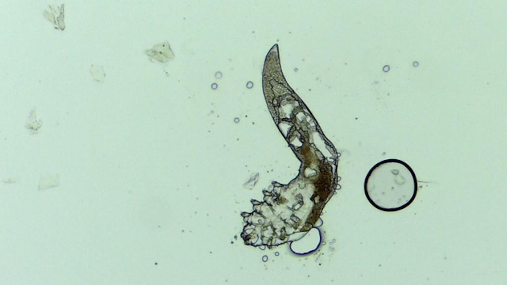 Paraziták és mutáns magzatok – Íme, a 10 legszörnyűbb születési rendellenesség