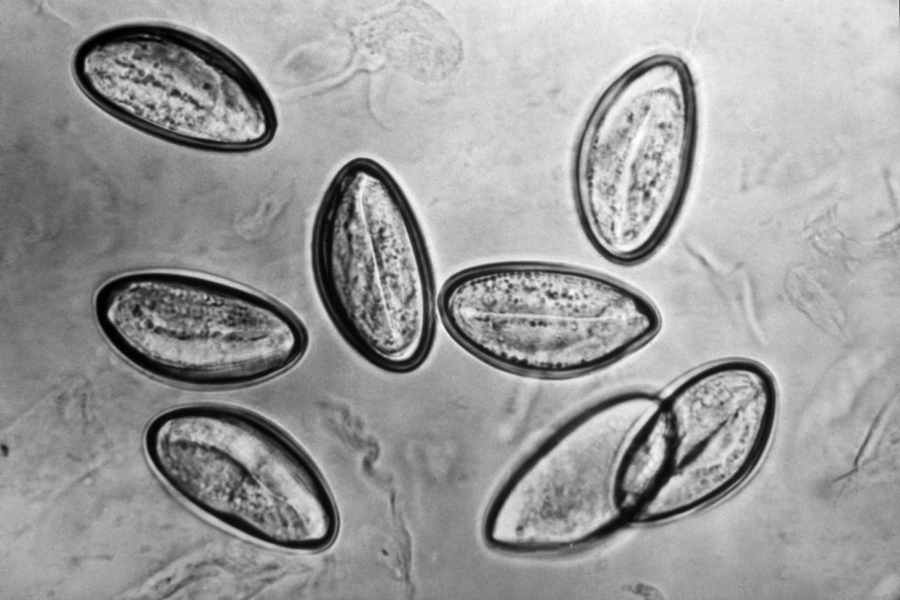 milyen férgek vannak felnőttekben teniosis antitestek