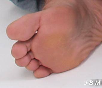 fekete csíkok a körmök alatt paraziták bőr helminthiasis