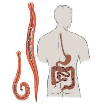 a pinworms gyermekeknél átvitt állapotban cérnagiliszta kezelése házilag