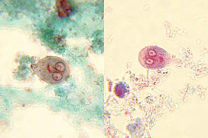 gyógyítani férgek de Platyhelminthes módszer a gázcserére