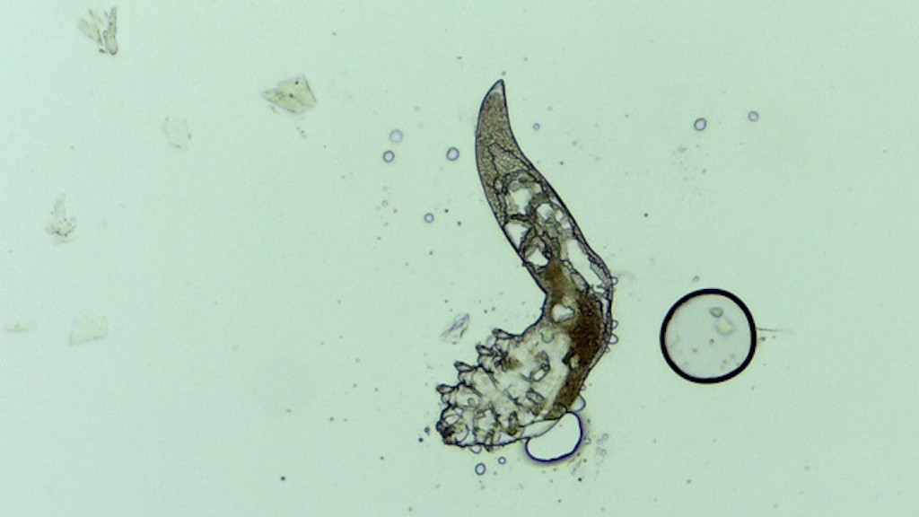 paraziták a belső szervekben
