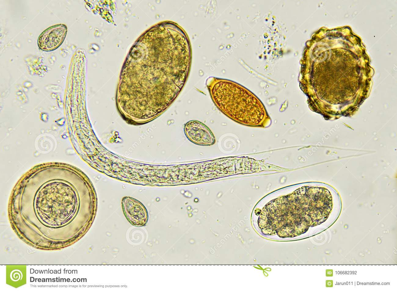 15 Best Parazitologie images   Medical laboratory, Medical laboratory science, Microbiology