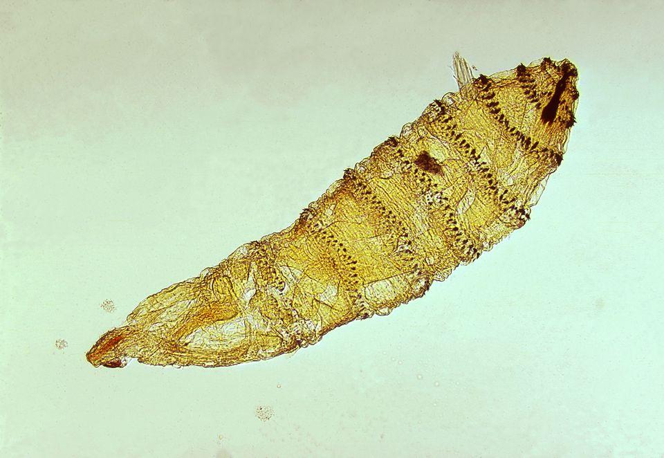 bőr paraziták féregszerű készítmények előkészítése paraziták tanulmányozására