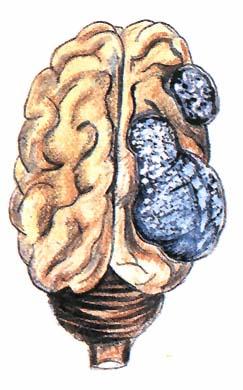 férgek típusú férgek ilyenek az emberekben krónikus aszcariasis kezelési rend