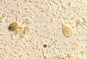 giardia microscopy