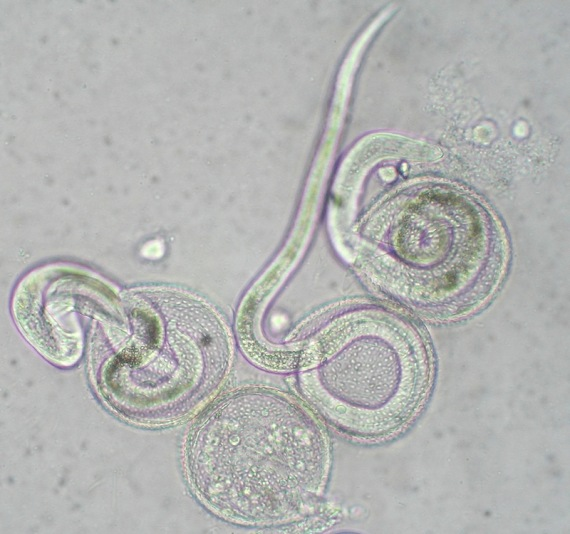 giardia tratament copii
