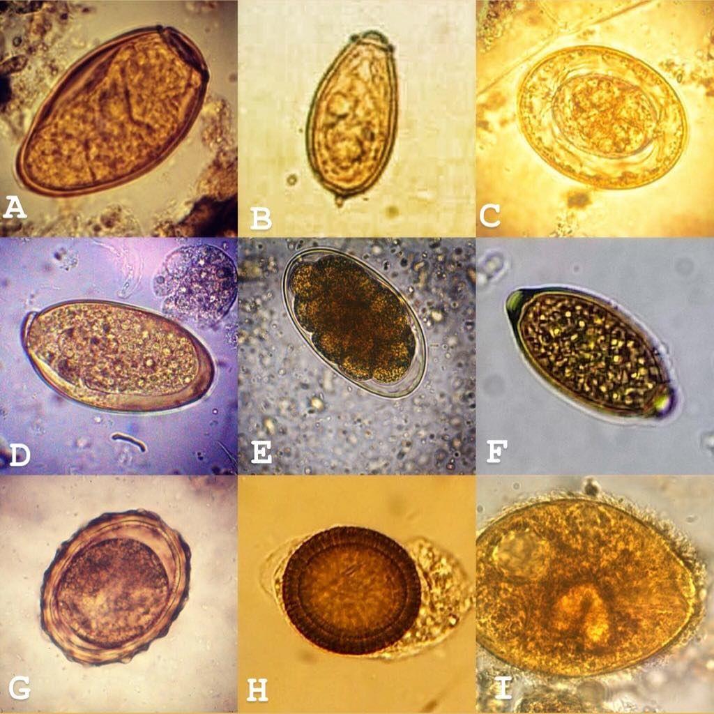 fascioliasis tojások gyermekek enterobiasis gyógyszere