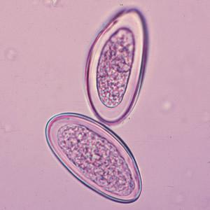 férgek és paraziták kezelése felnőtteknél férgek gyermekek kezelési módszereiben