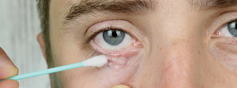 nitaxis parazita kezelés férgek kezelése a fülben