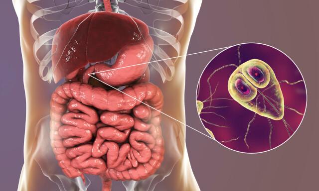 giardia behandling milyen férgek okoznak puffadást az emberekben