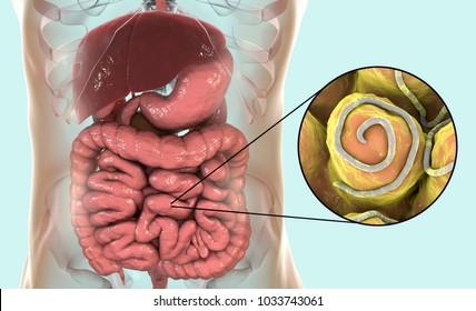 helminth és pinworm kezelés belfereg tunetei csecsemoknel