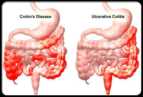 helmintikus terápia Crohn- kór