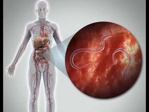 A giardiasis megelőzése mint a férgek elleni kezelés