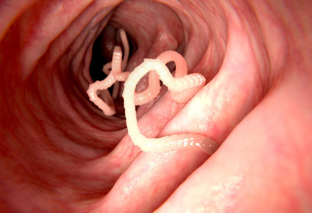 paraziták jelei és kezelése az emberi férgek kezelése