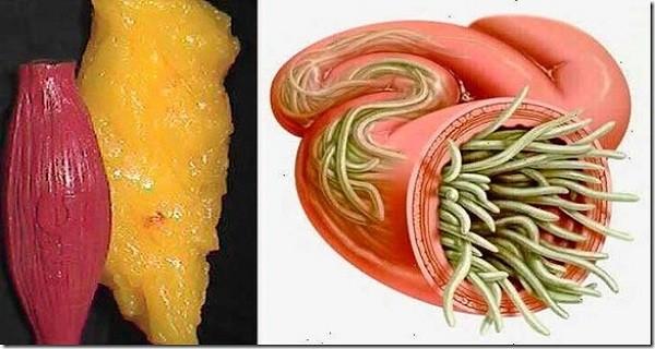 paraziták zsírban hogyan lehet megszabadulni a pinworms től felnőtteknél