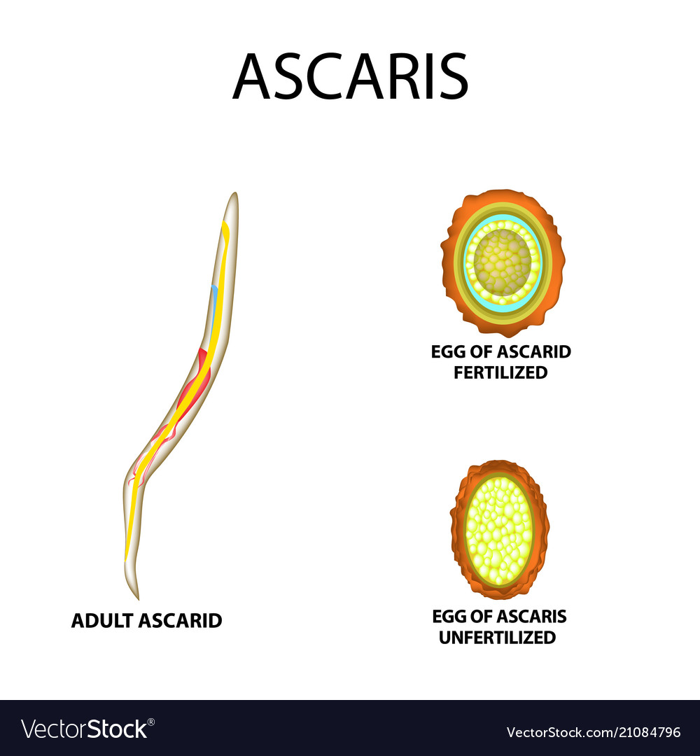 a pinworms és az ascaris rövid jellemzése a paraziták hagymatisztítása