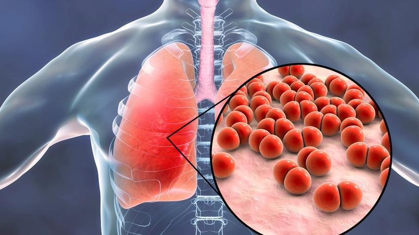 tüdő tünetek kezelése a kerekes és a pinworms összehasonlítása