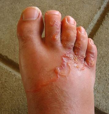 giardia bij mensen felnőtt férgek tünetei és kezelési áttekintése