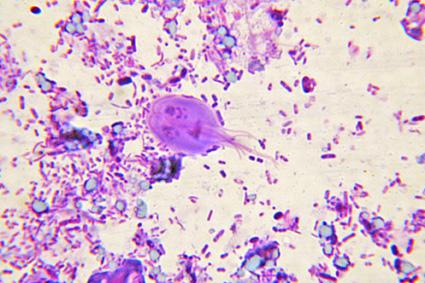 giardia special stain