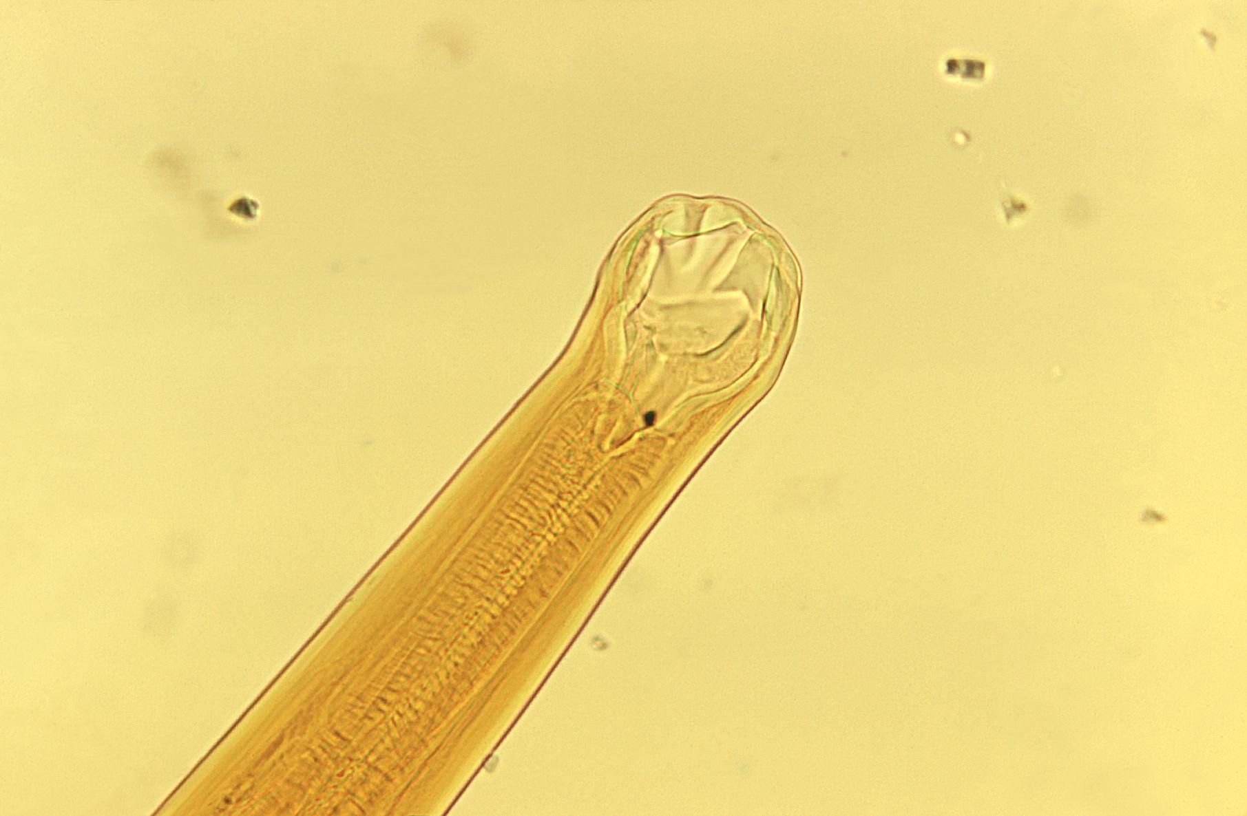 komplex készítmény paraziták tisztítására