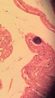 a trichocephalosis az féreghajto gyerekeknek