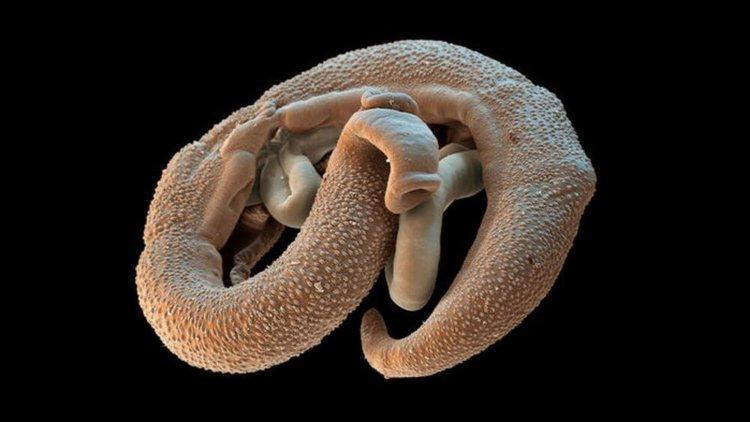 lentec széles morfológia férgek gyermekek enterobiosis kezelésében
