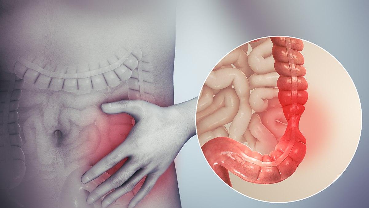 giardiasis meaning in telugu fekélyes vastagbélgyulladás kezelése parazitákkal