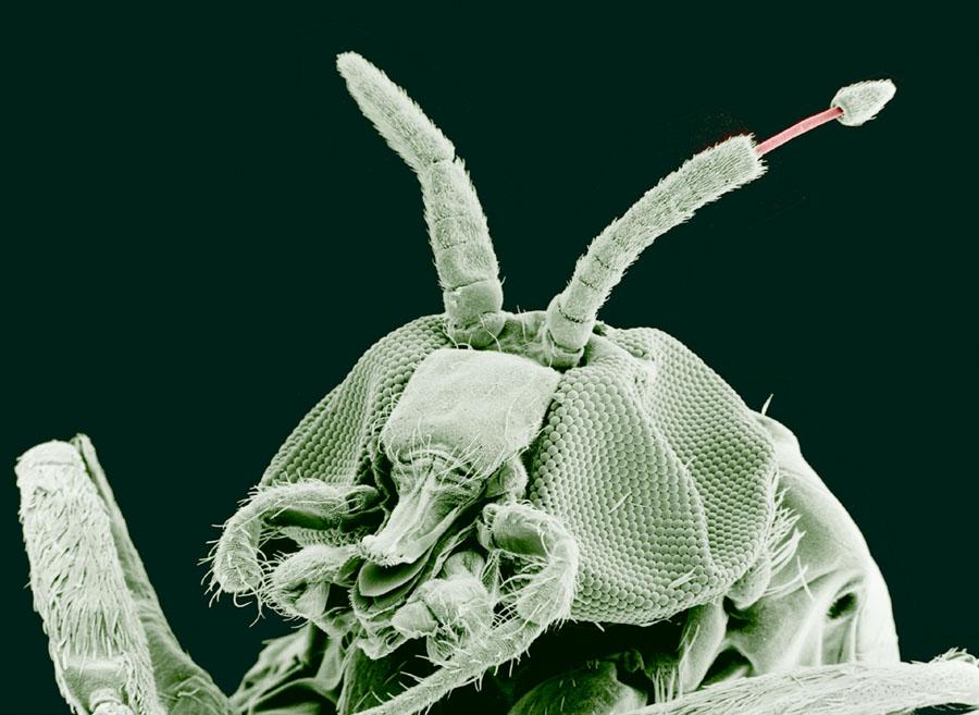 férgek galandféreg tisztitsa meg a testet a parazitaktol, mint