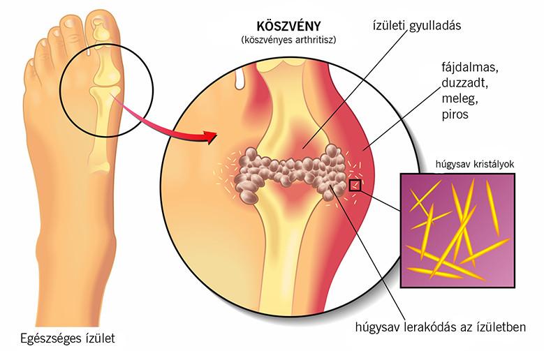 izom körféreg kezelés a felnőtt kerekférge az emberi bélben él