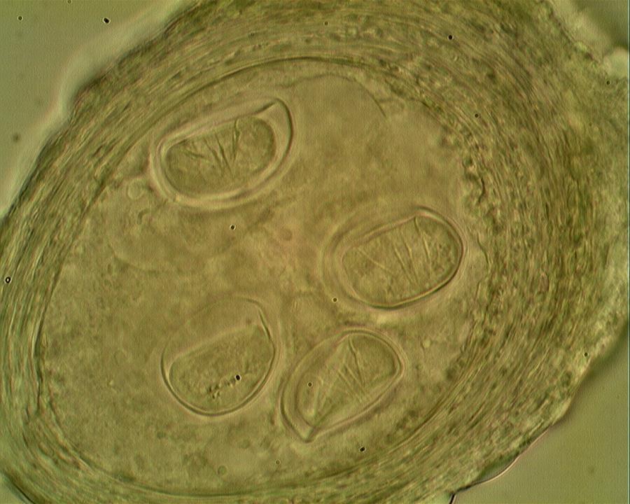 pinworms mennyit kell kezelni paraziták kép